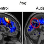 Falling in Love with Autism: From Brain to Behavior